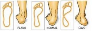 Tipos de pie según la forma
